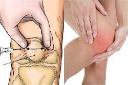 Bệnh thoái hóa khớp gối và  3 phương pháp chữa phổ biến nhất hiện nay