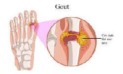 Bệnh gout là gì và cách điều trị bệnh gout