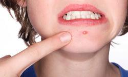 Dấu hiệu bệnh tật thể hiện qua làn da